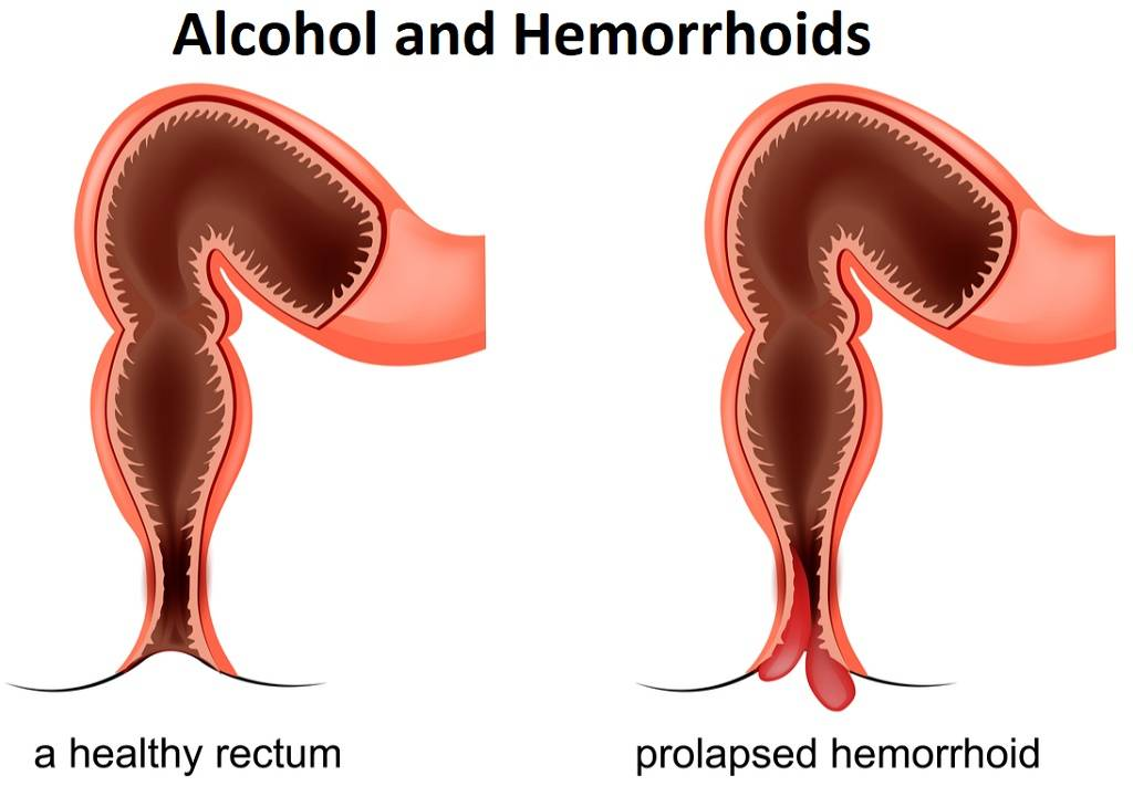 Геморрой и алкоголь: можно ли пить алкоголь при геморрое