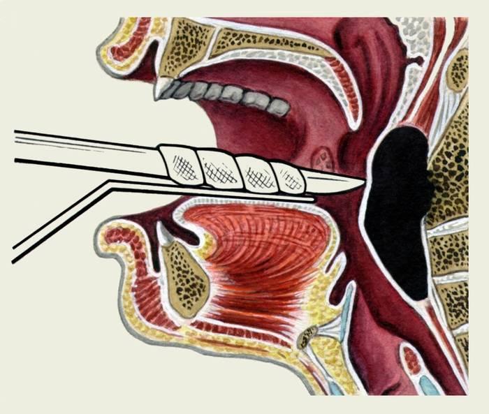 заглоточный абсцесс симптомы у взрослых