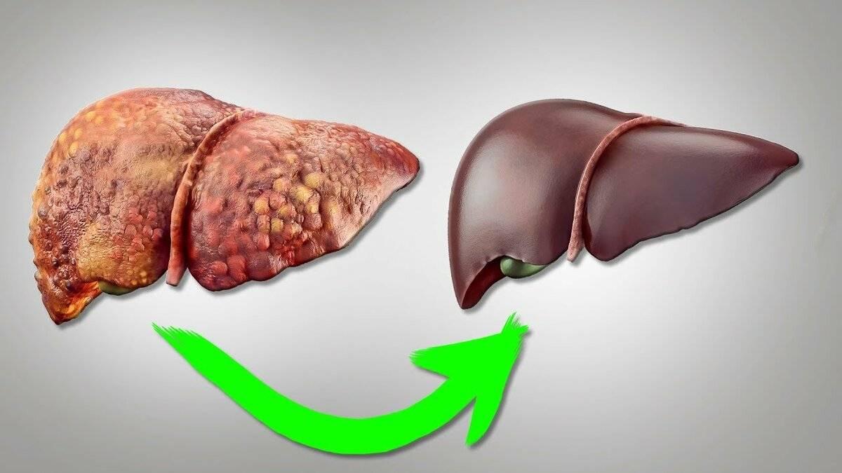 как восстановить печень после гепатита с