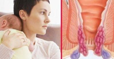 Каким образом проводится лечение геморроя, возникшего после родов?