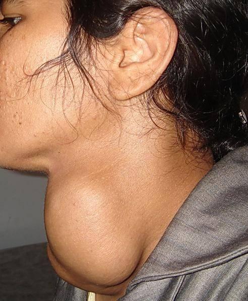 что такое гиперплазия щитовидной железы