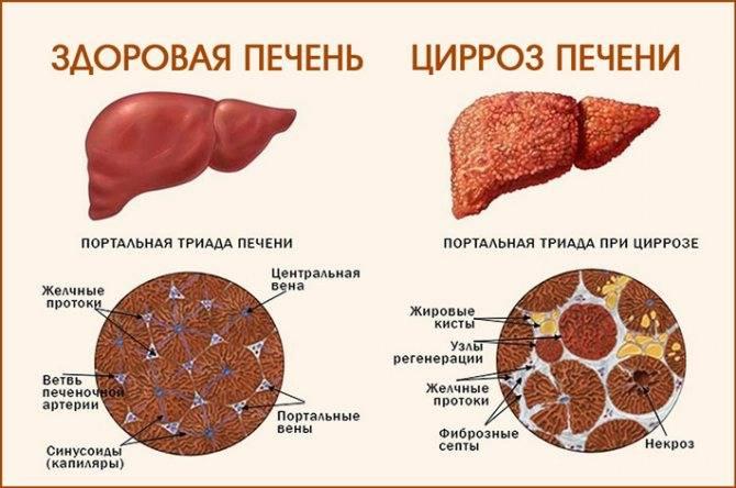 Как передаётся цирроз печени?