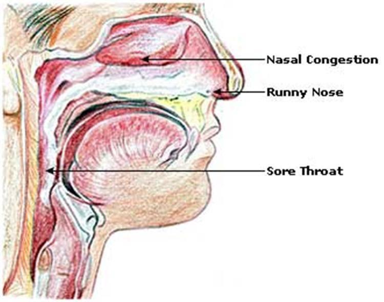 Воспаление носоглотки: признаки, диагностика и лечение