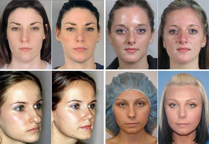 Искривление перегородки носа: лечение без операции в домашних условиях