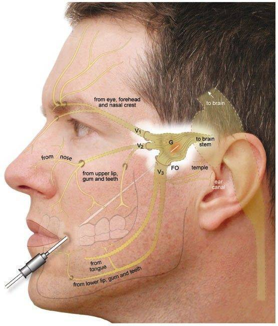 невралгия мортона симптомы