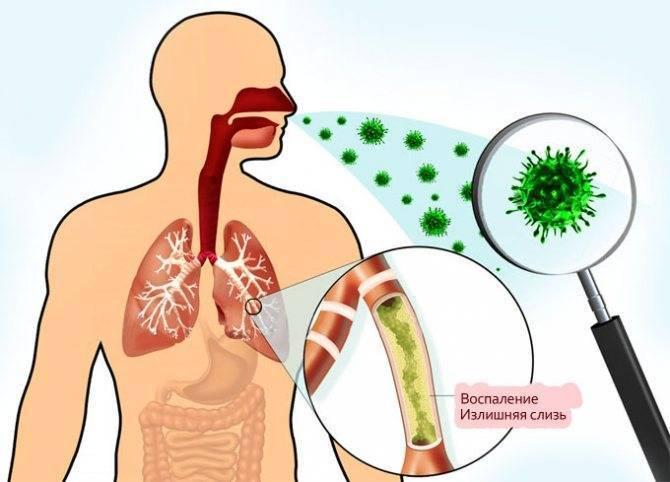 Почему возникает свистящий кашель у детей и что может помочь в лечении