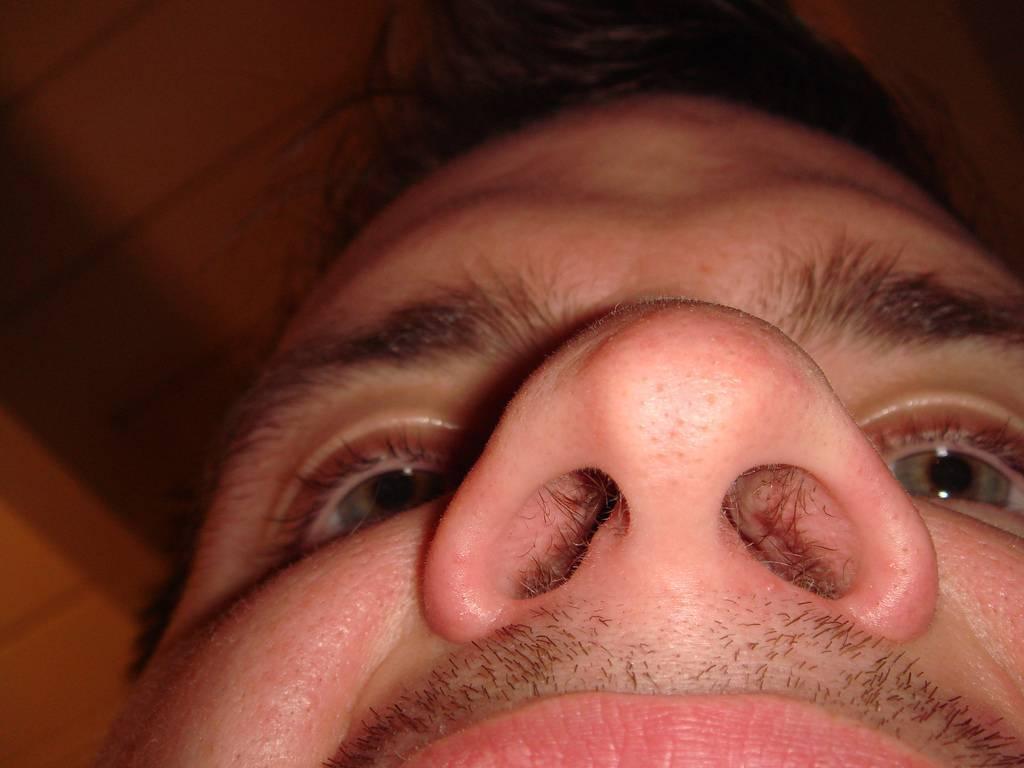 Способы лечения болячек в носу, народные средства