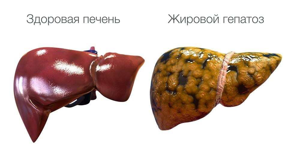 признаки жирового гепатоза