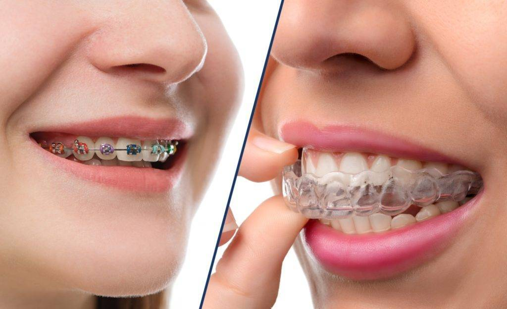 Что необходимо знать о скобах на зубы: виды, установка, уход