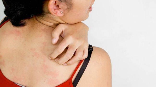 герпес на спине заразен