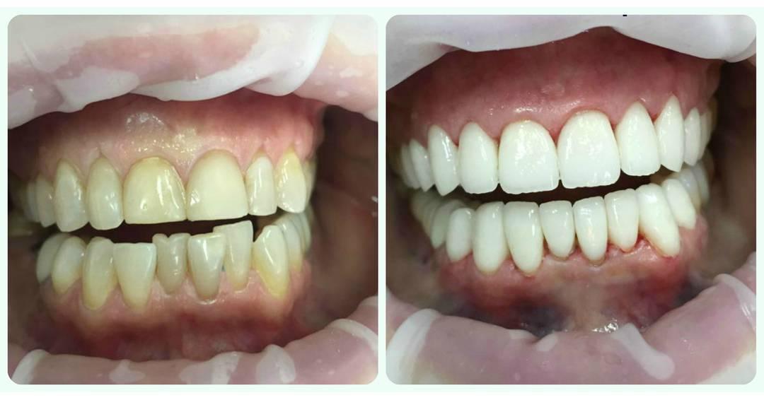Как исправить один кривой зуб?