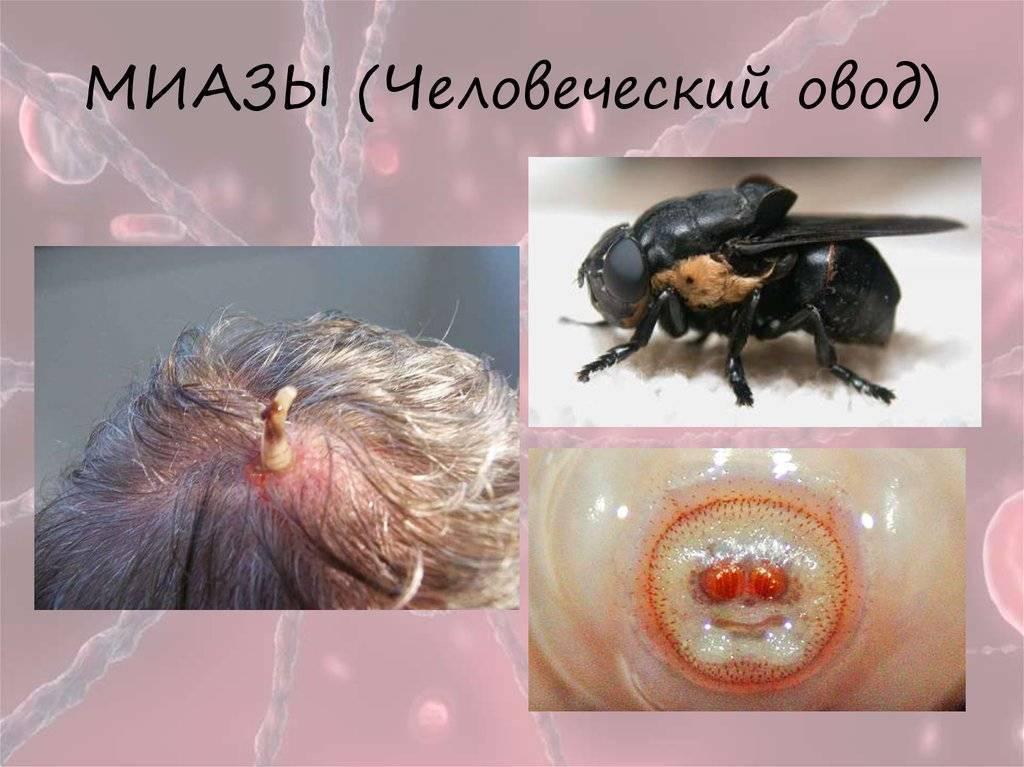 личинки в теле человека