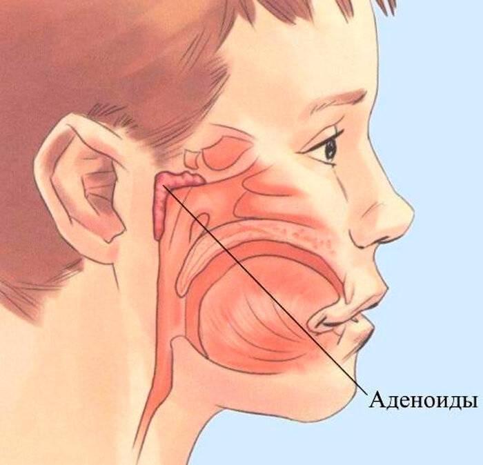 Аденоиды - причины, симптомы, диагностика и лечение