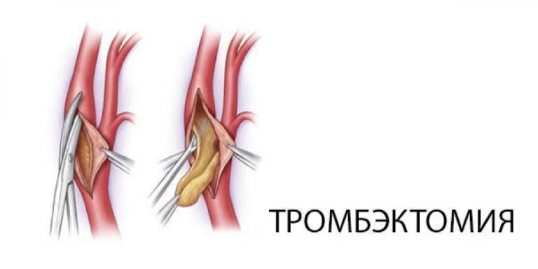 Тромбэктомия геморроидального узла - операция по удалению тромба