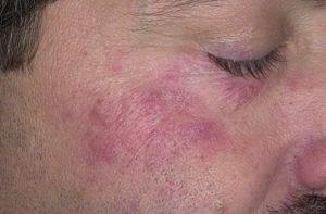 Солярий при себорейном дерматите лица
