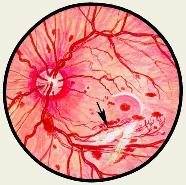 Неврит (воспаление) зрительного нерва