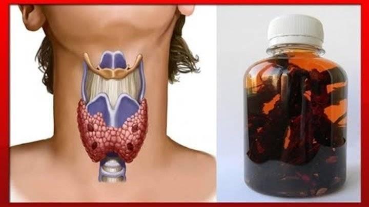 узлы щитовидной железы лечение народными средствами