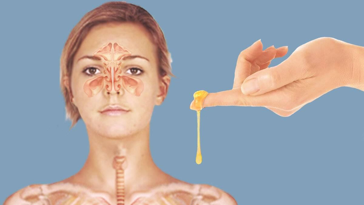 мед в нос от насморка
