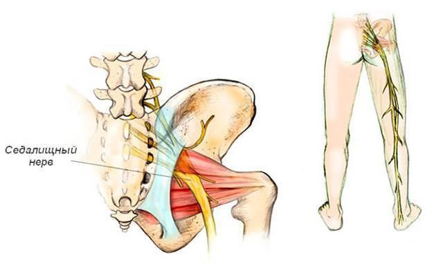 Признаки и лечение герпетической невралгии