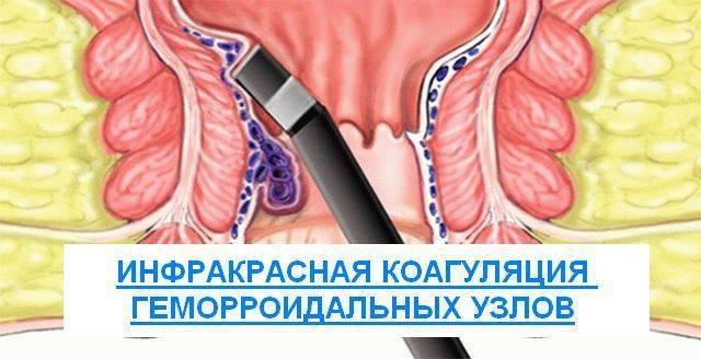 Фотокоагуляция геморроидальных узлов: особенности процедуры, подготовка, противопоказания