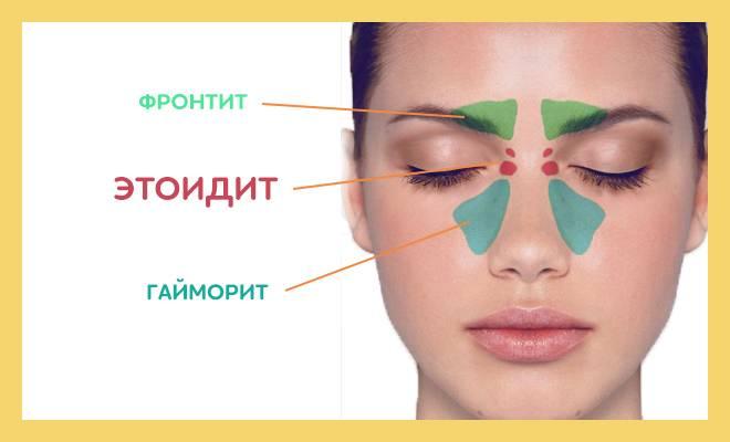 Этмоидит. причины, симптомы, виды и лечение этмоидита