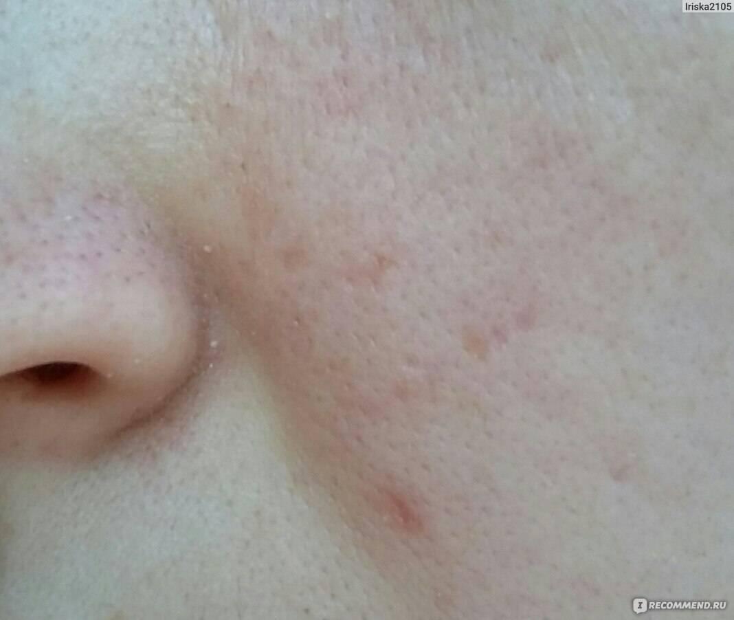 Лечение демодекоза на лице. препараты. профилактика. фото