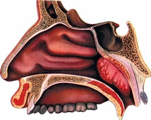 воспаление носоглотки симптомы