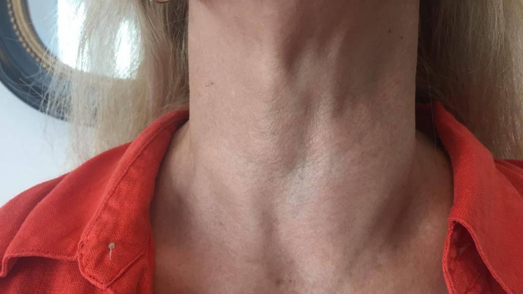 Увеличенная щитовидка чем грозит