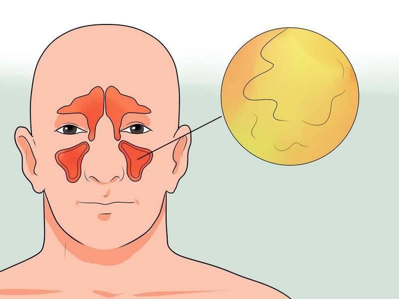 хронический гайморит лечение народными средствами