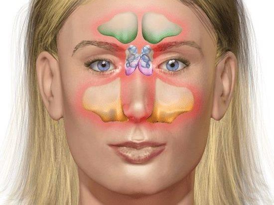 Гнойный гайморит (хронический, острый) – причины, симптомы, лечение