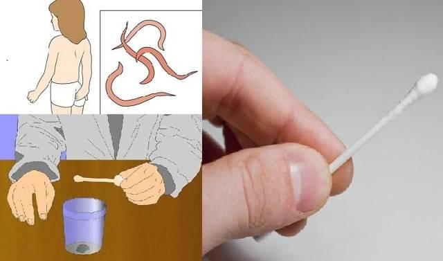 Анализ кала на яйца глистов (яйца гельминтов)