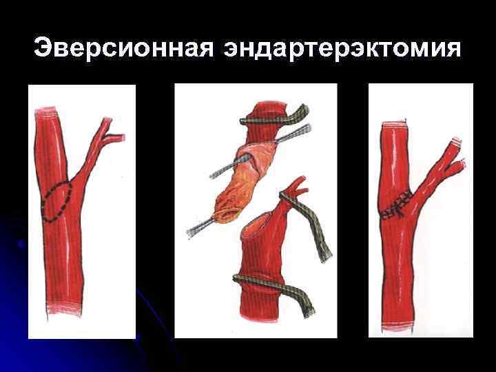 Каротидная эндартерэктомия: методика хирургической коррекции нарушений мозгового кровотока