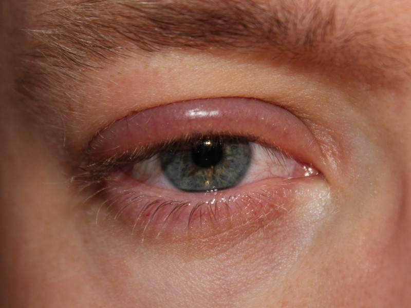 Аллергический блефарит: симптомы, лечение и особенности