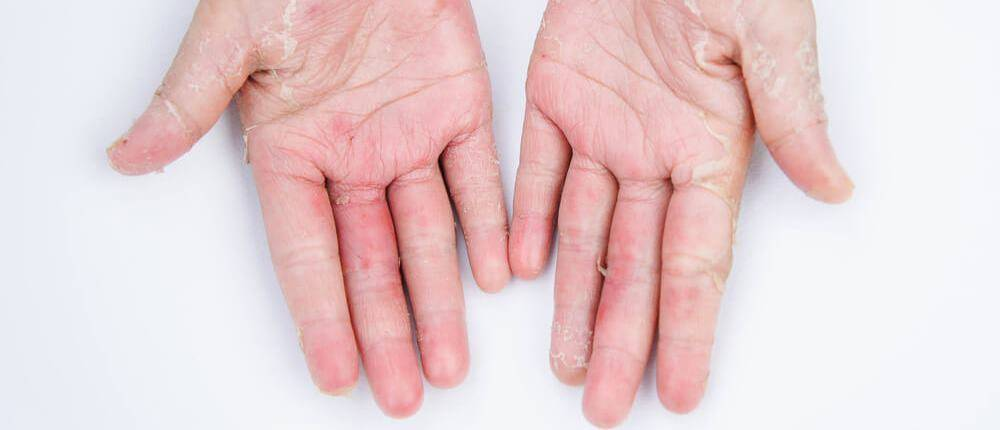 Атипичный дерматит симптомы и лечение у взрослых