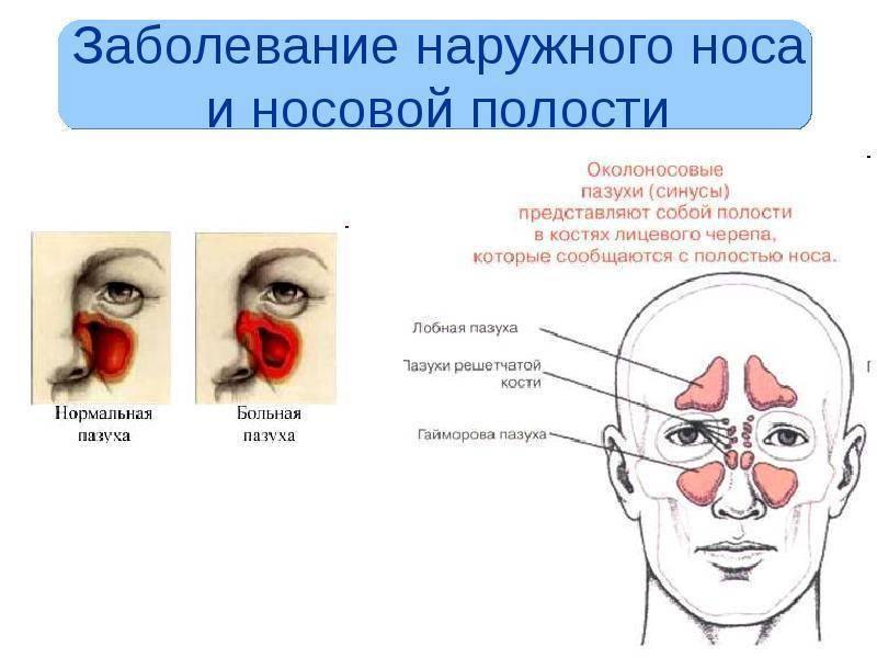 болезни носа по признакам диагноз и лечение