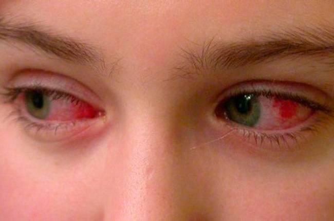 воспаление глаза у ребенка как лечить