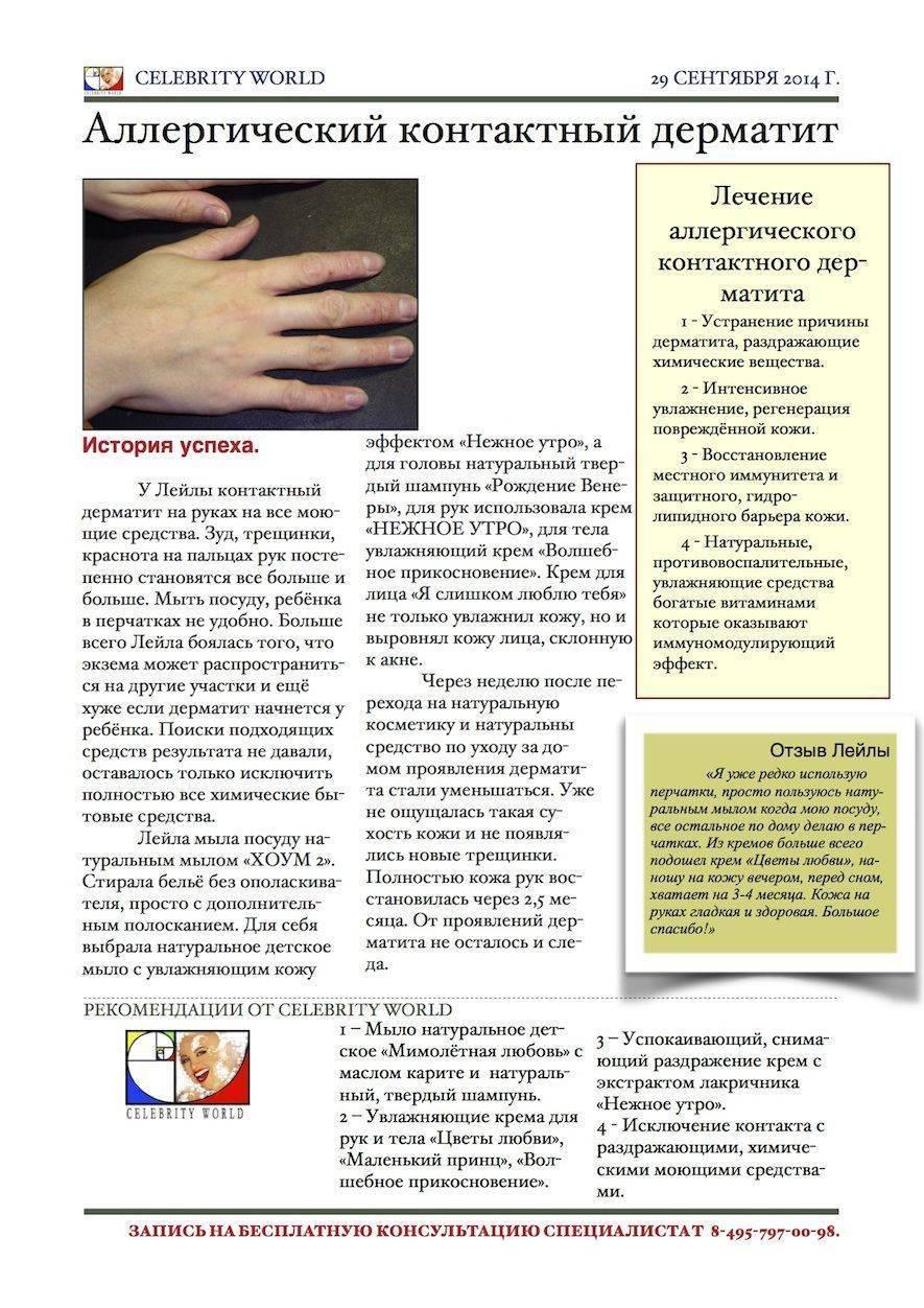 лечение аллергического контактного дерматита