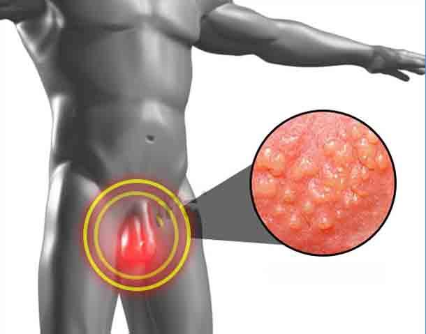 Проявления и лечение генитального герпеса у мужчин