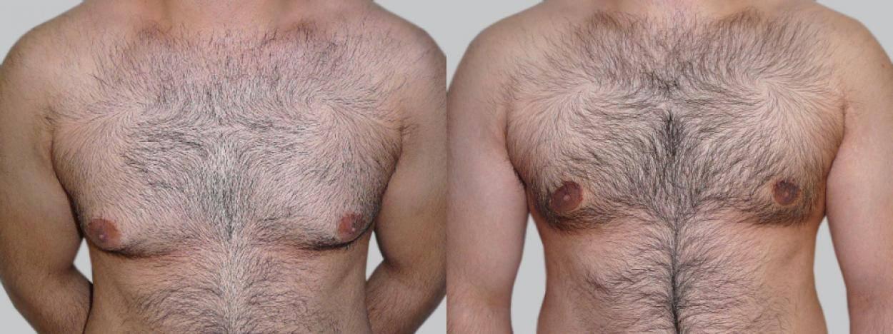 Народные средства от мастопатии