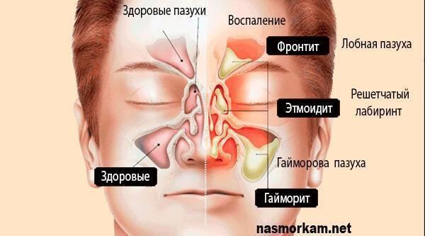 Фронтит - симптомы, лечение и профилактика. фронтит: лечение в домашних условиях