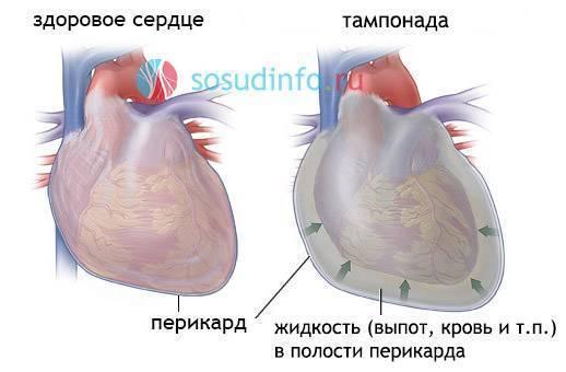 Осложнение на сердце после ангины