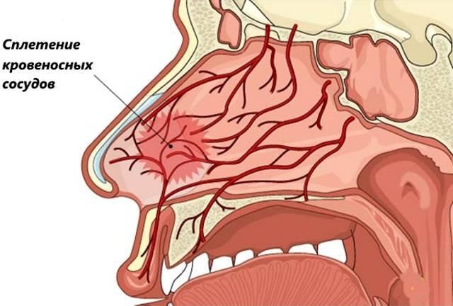 кровь из носа лечение