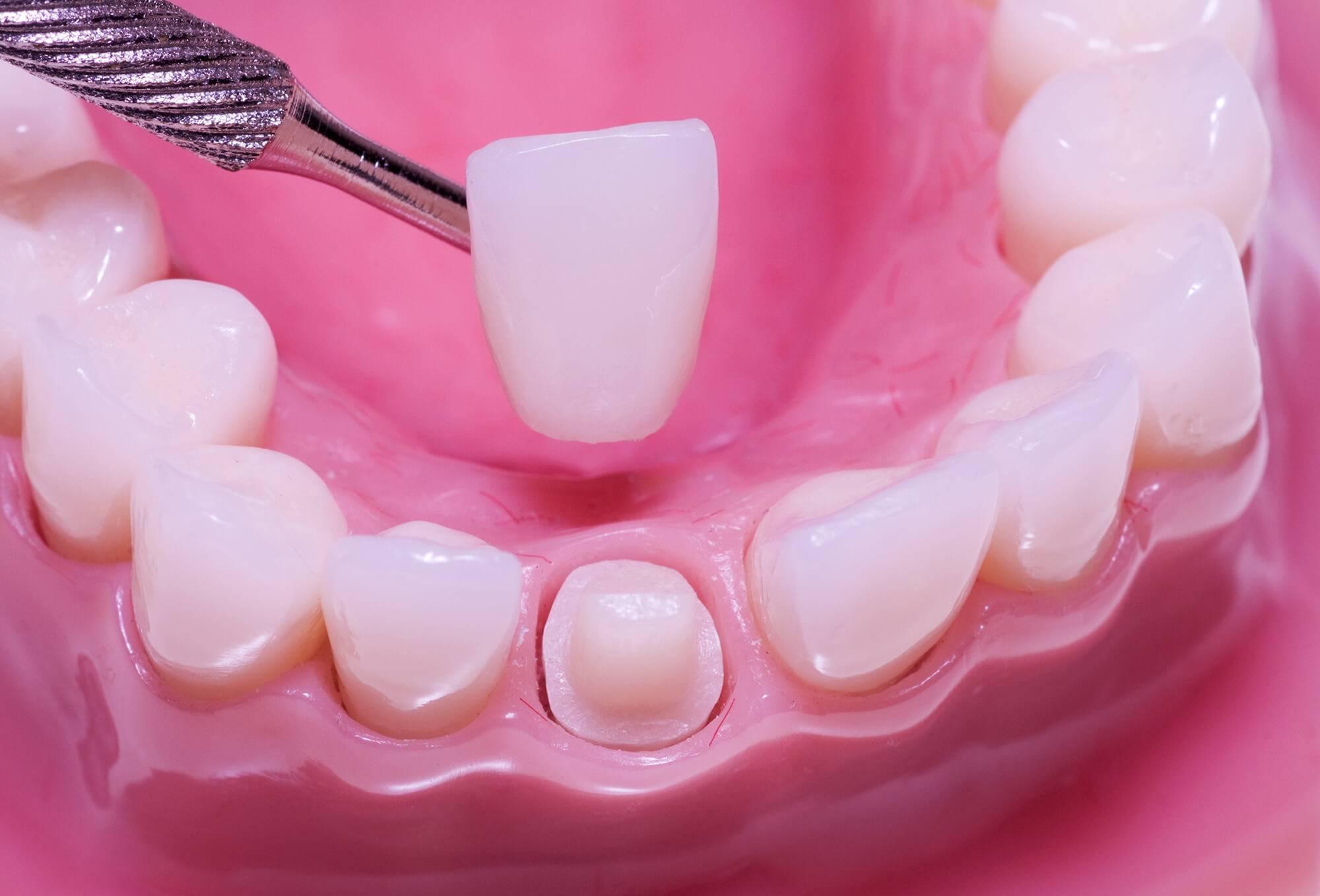 Несъемный зубной протез на имплантах — виды протезирования зубов