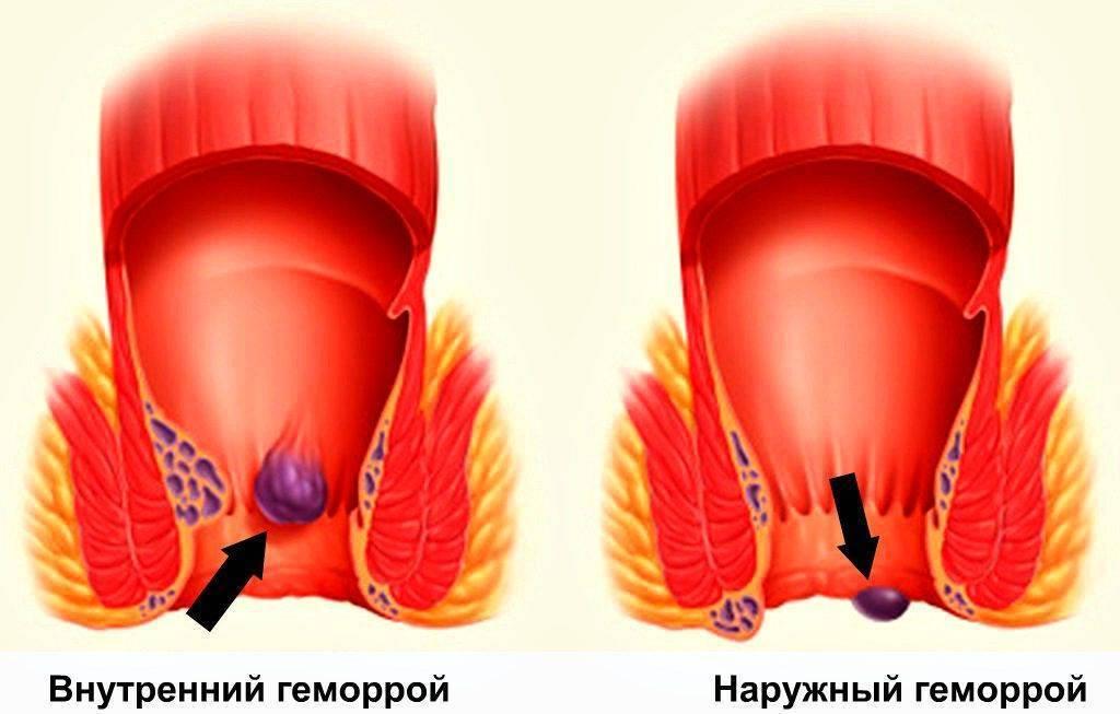 симптомы внутреннего геморроя у мужчин