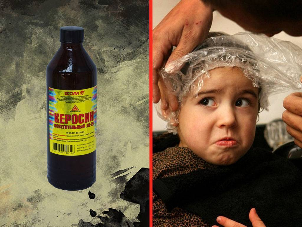 Керосин от вшей – как разводить средство и как обрабатывать голову, плюсы и минусы
