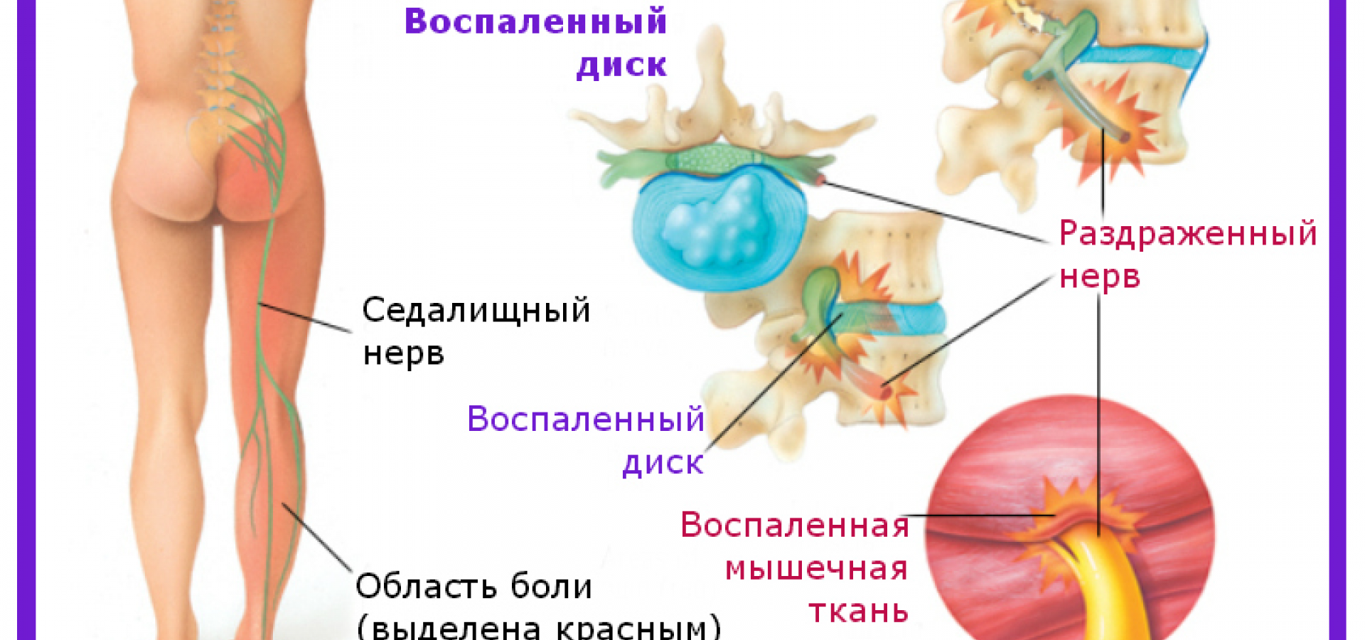 Невралгия седалищного нерва: симптомы, диагностика и методы лечения