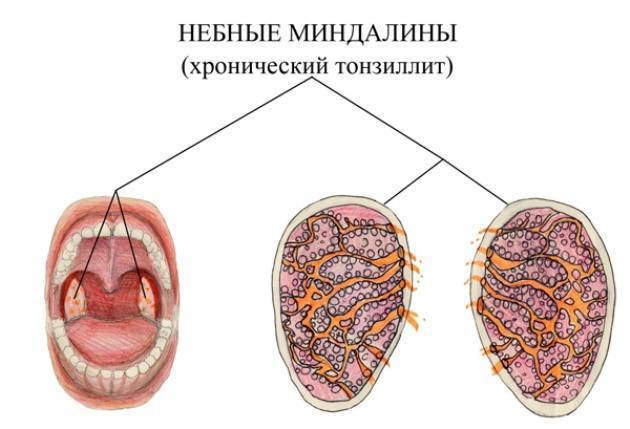 чистка миндалин