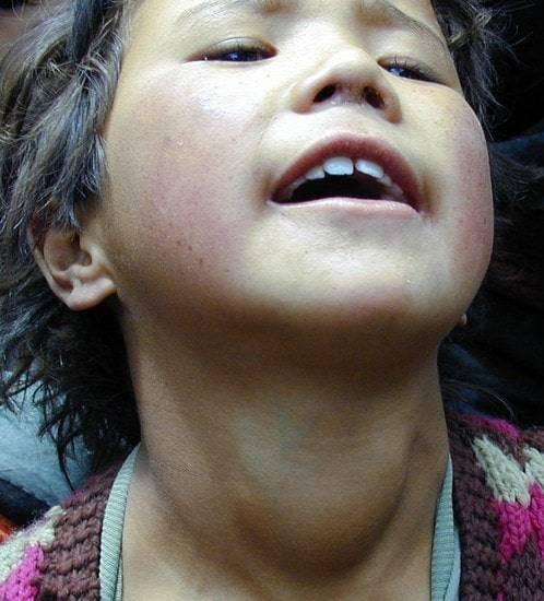 у ребенка 7 лет увеличена щитовидная железа