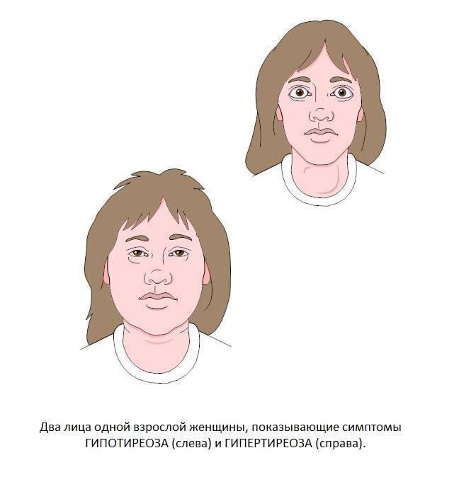 щитовидная железа и нервный стресс