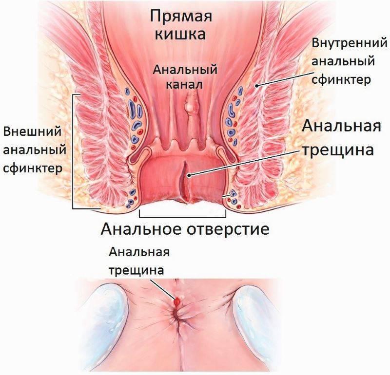 Причины и лечение начальной стадии геморроя